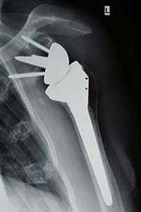 Abbildung 3: Inverse Totalendoprothese