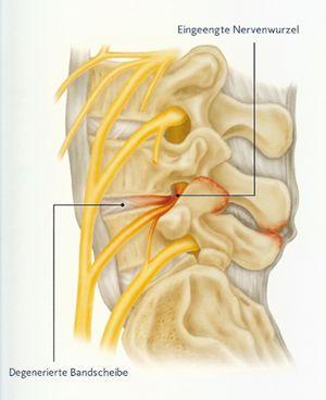 Einengung eines Nervenkanals der Lendenwirbelsäule