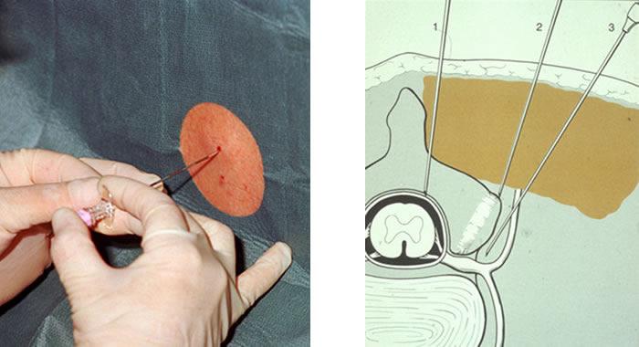 Mikrotherapie: Injektionstechniken